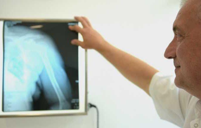 VIDEO. Cele 10.000 de ore ale chirurgului ortoped